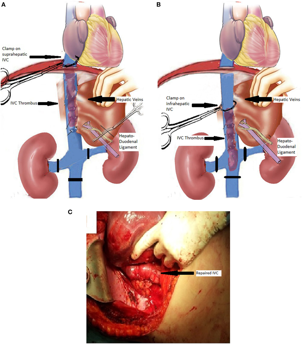 renal cancer vena cava involvement