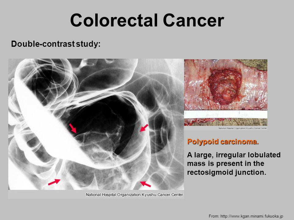 colorectal cancer junction ciuperci cu maioneza