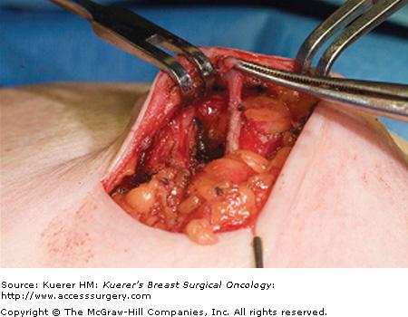 neuroblastom cancer copii papilloma virus orofaringeo sintomi