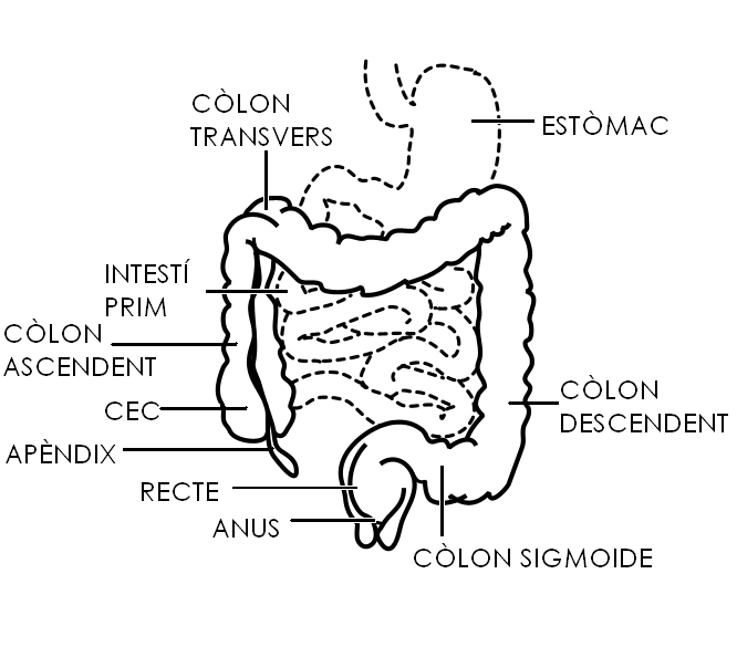 Polipii Colonici - cauze, simptome, tratament