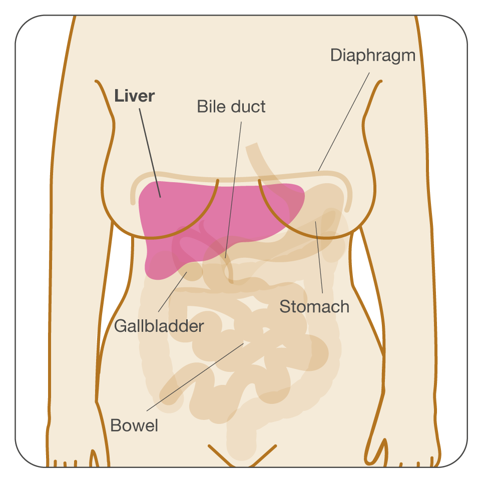 metastatic cancer in liver prognosis bacterii in gat