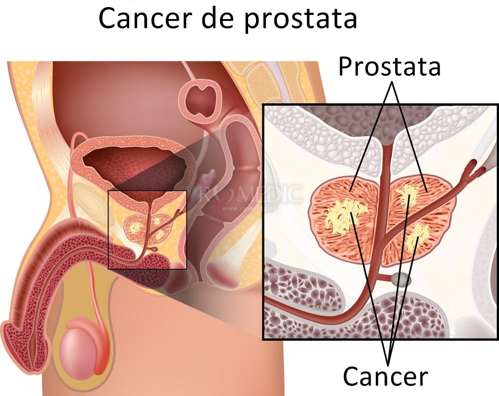 que es cancer de higado reteta pentru detoxifierea colonului