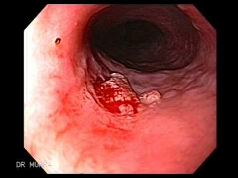 define esophageal papilloma human papillomavirus vaccine discovery