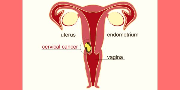 cervical cancer or pregnancy