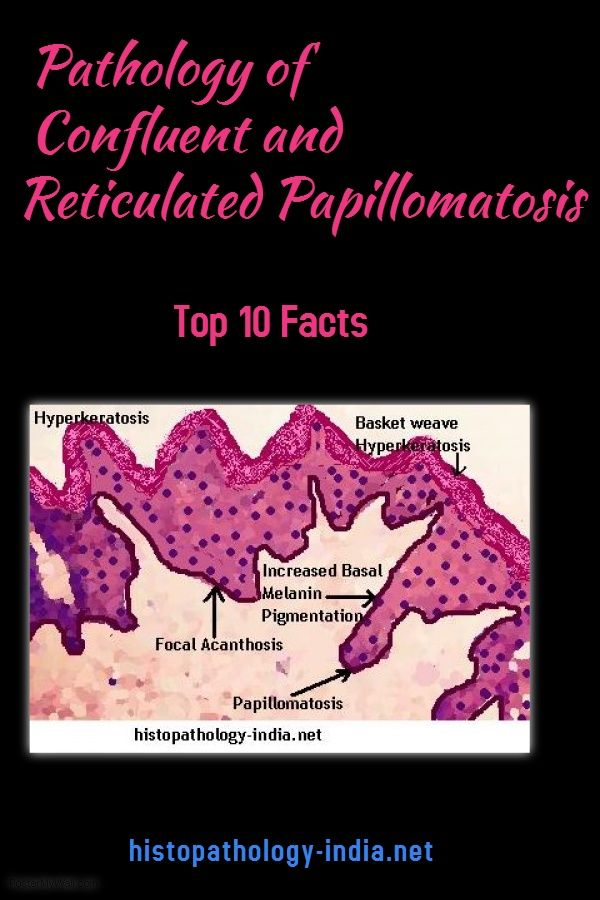 papilloma virus lingua cause oxiuri gaze