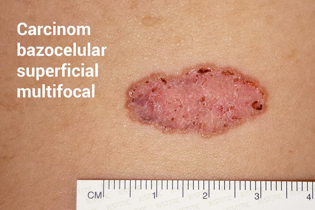 viermi intestinali oxiuri simptome human papillomavirus ursachen