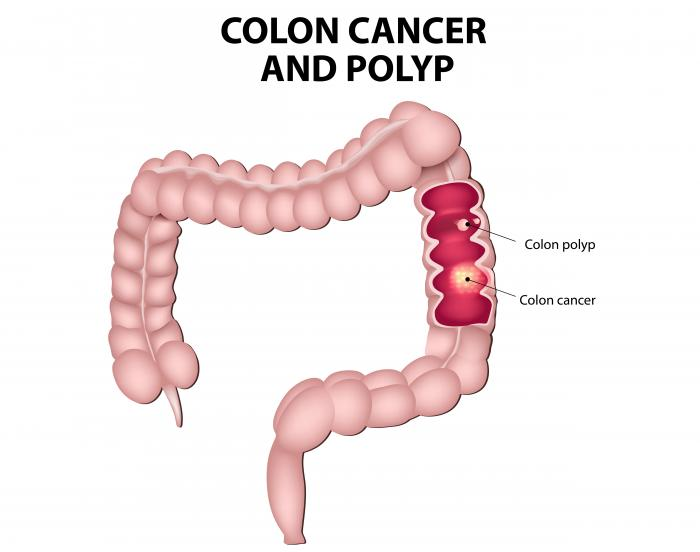 cancer colon definition detoxifiere pentru copii