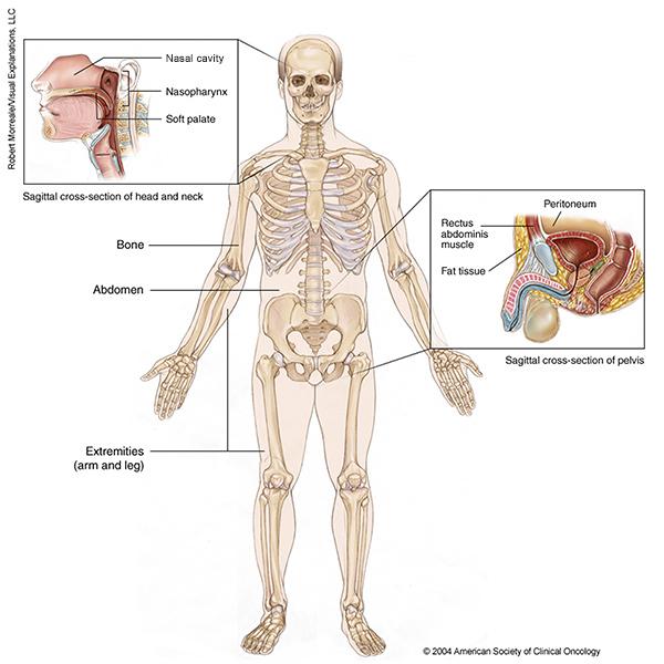 sarcoma cancer cause como identificar el papiloma humano en la boca