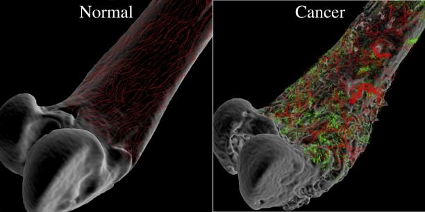 high risk intraductal papilloma cancer de col uterin miros