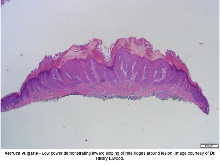papilloma pathology outlines skin parazitii 2019