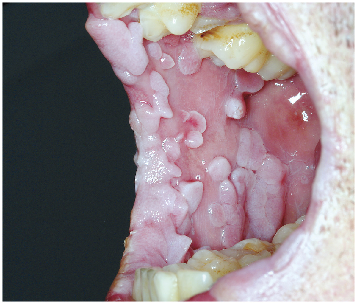 papillomas on tongue