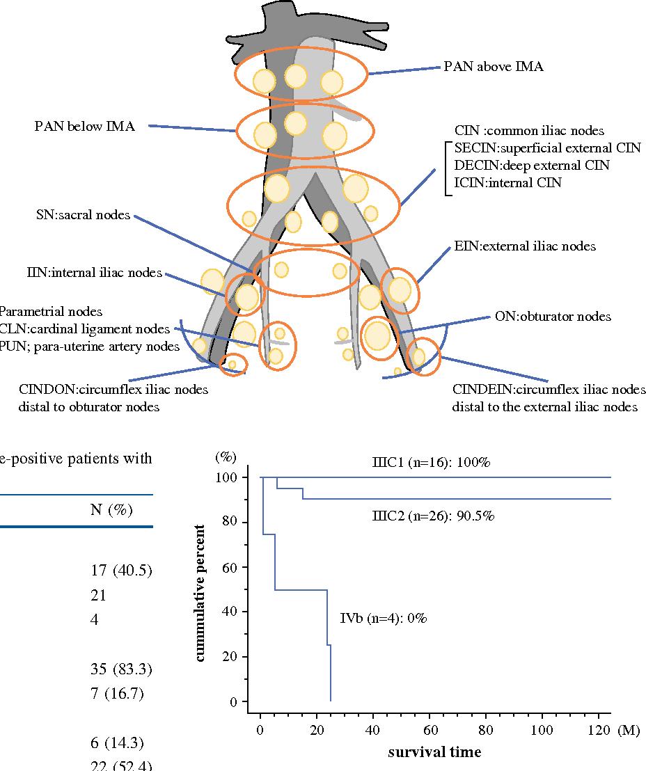 endometrial cancer lymph node metastasis centru detoxifiere herghelia