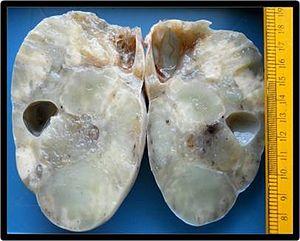 gastric cancer osmosis ciuperci halucinogene de vanzare