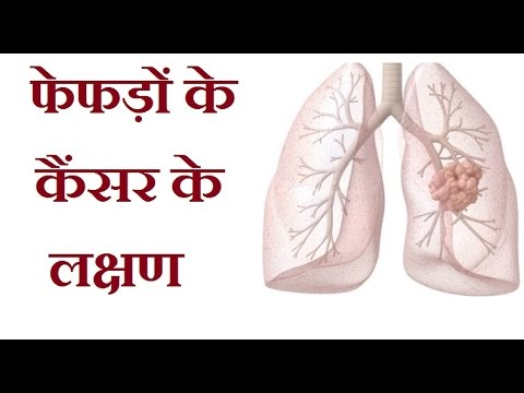 metastatic cancer in hindi hpv treatment with laser