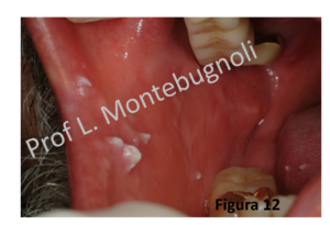 hpv bocca sintomi squamous papilloma carcinoma