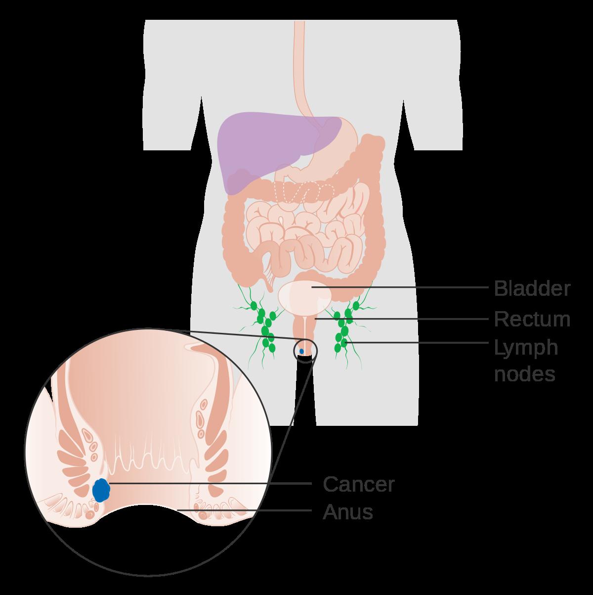 papilloma virus e tumore al colon