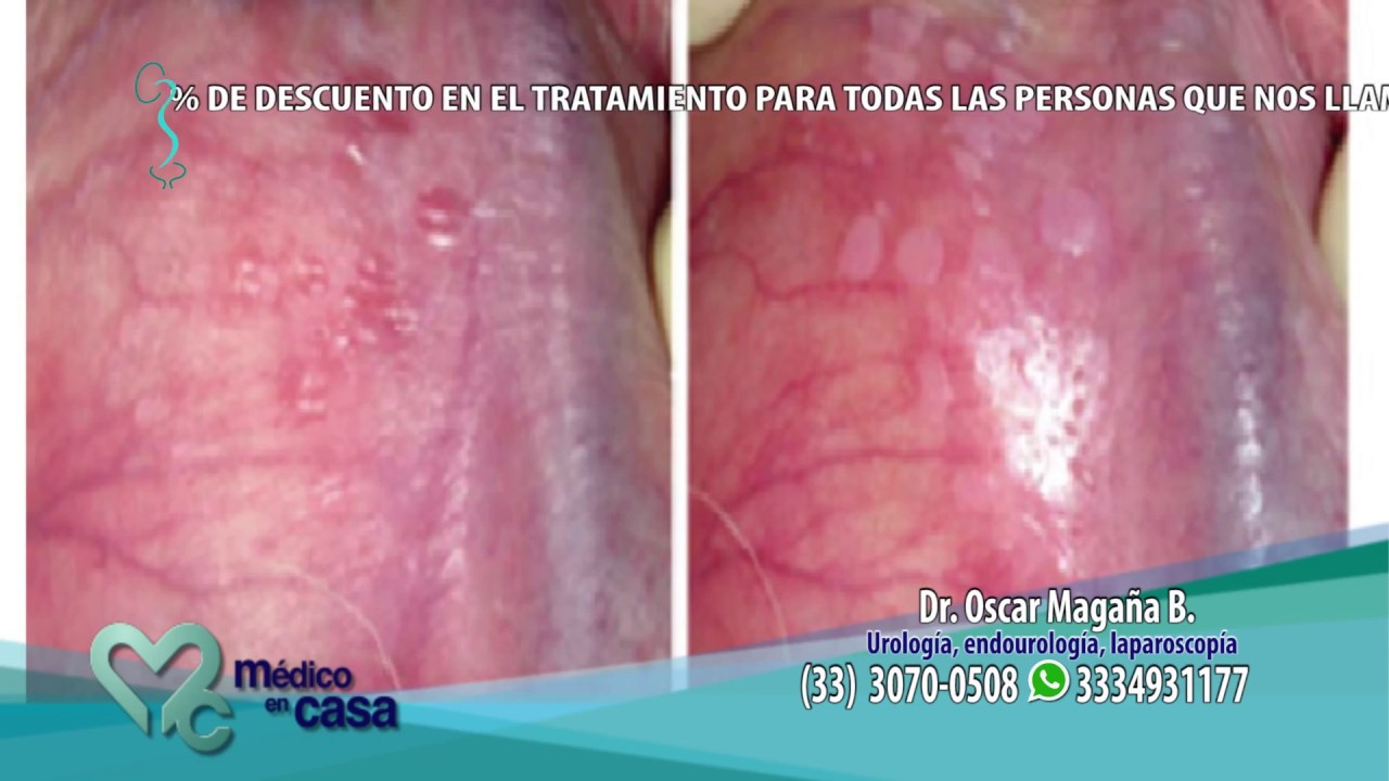 tratament paraziti cu usturoi hpv sinonasal carcinoma