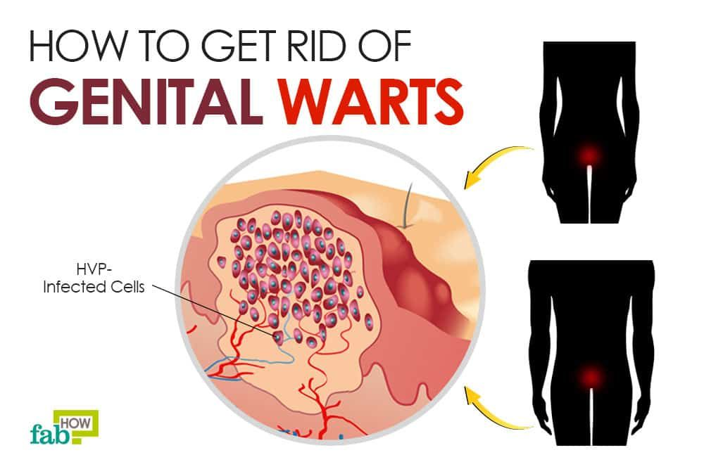 hpv warts yeast infection