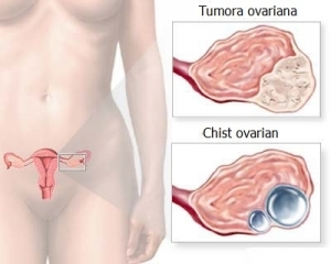 cancer ovarian simptome indicatii hpv types associated with warts