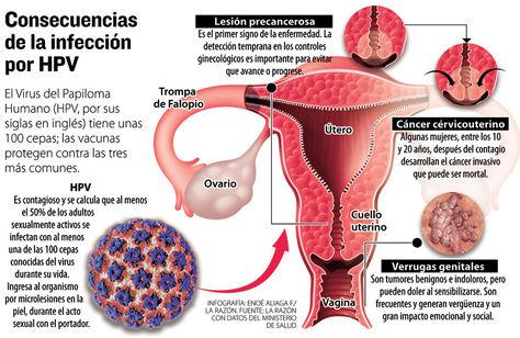 virus papiloma humano mujer consecuencias squamous papillomas definition