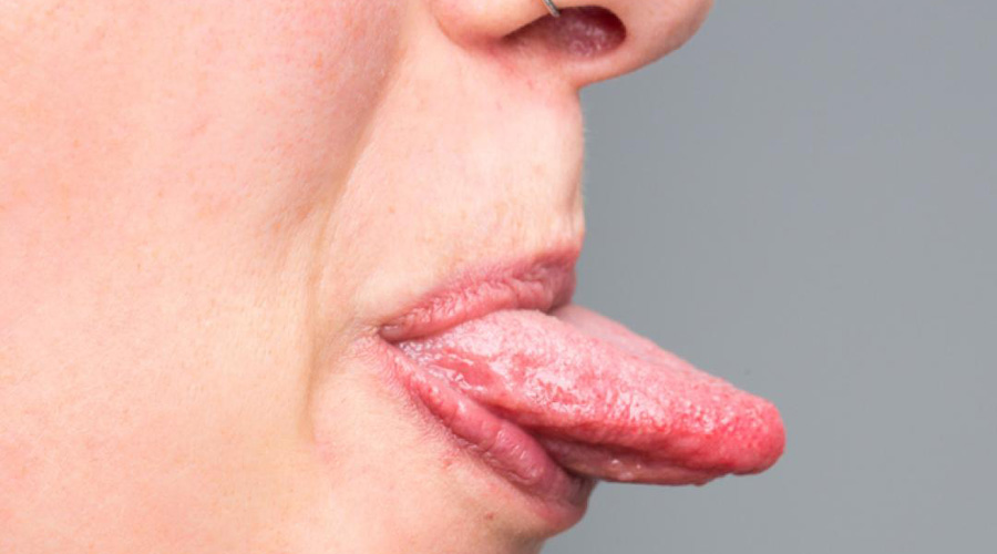 papiloma boca