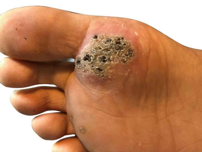 wart foot plantar