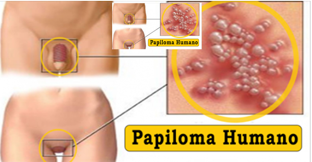 cancer colon papillomavirus