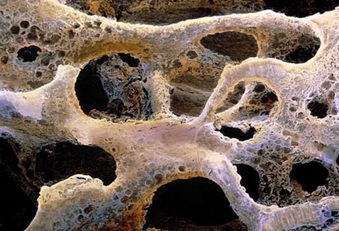 creams for hpv warts imagenes del virus papiloma humano en mujeres
