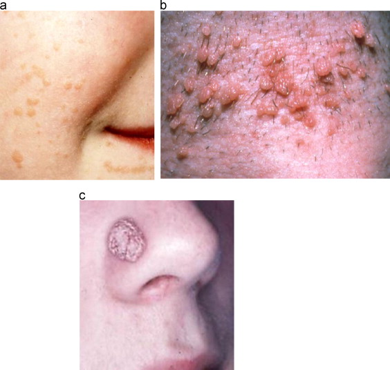 natural cure for papillomavirus papilloma with atypia