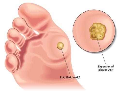 cura naturale per papilloma virus papillomavirus donne