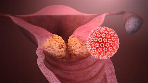 papillomavirus et bouton