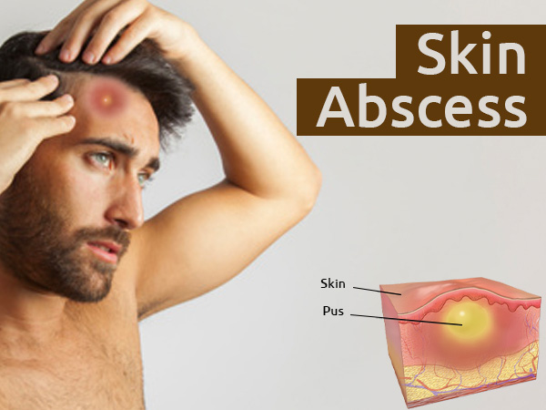 hpv causes abscesses