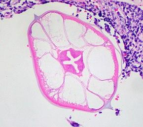 human papillomavirus infection reddit hpv warzen bekampfen