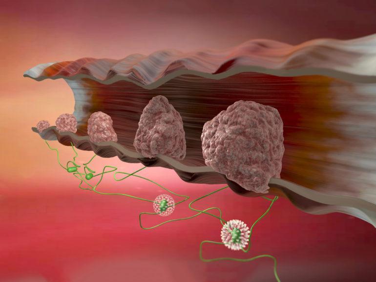 papilloma virus kanser parazitii noutati