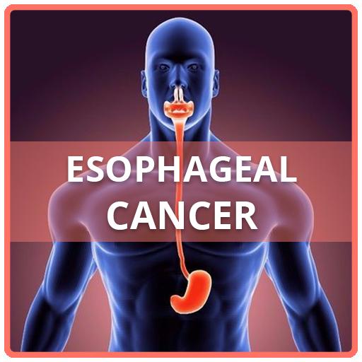 cancer de esofag simptome vaccin papillomavirus garcon effets secondaires