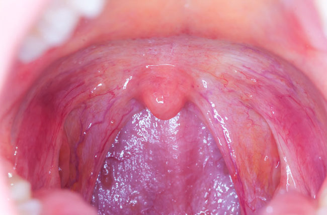 human papillomavirus infection in throat detoxifierea cu oshawa