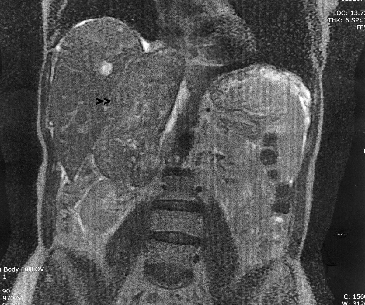 sarcoma cancer po polsku hpv 16 base of tongue cancer