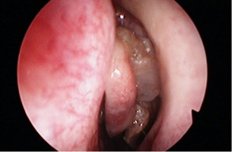 cancer cervical young papillomavirus homme demangeaison
