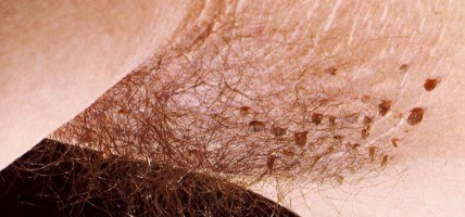 papillom entfernen kosten ovarian cancer lawsuit