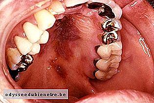cancer cerul gurii