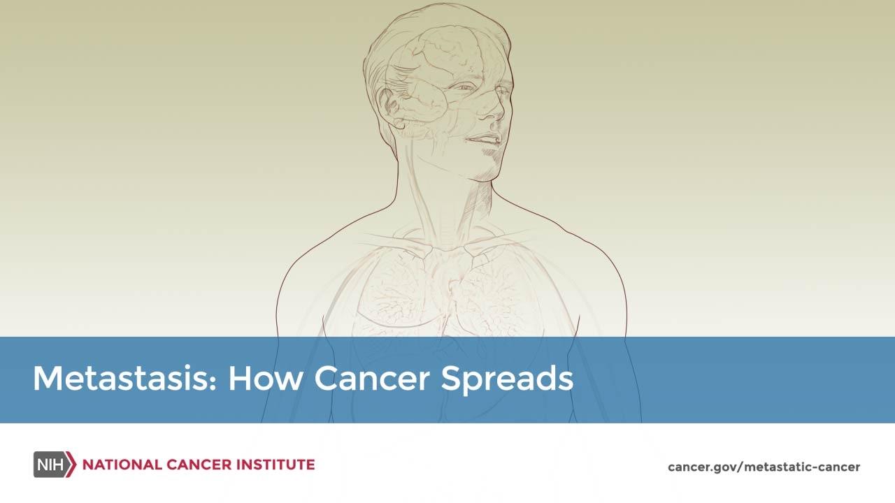 metastatic cancer marathi detoxifierea ficatului si rinichilor