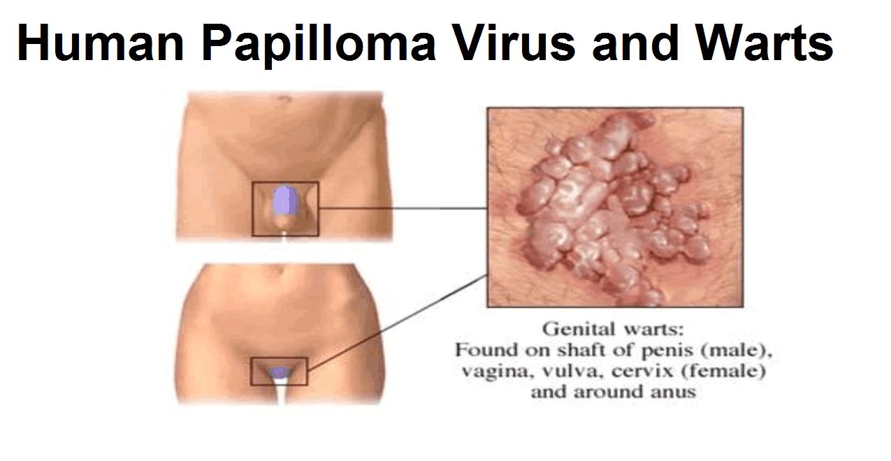 warts pregnancy genital