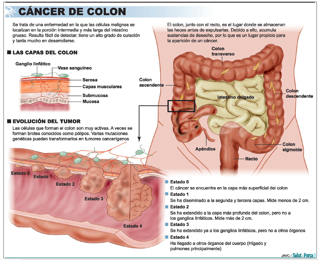 cancer de colon heces sangre