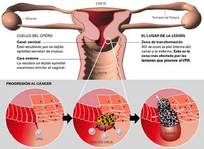virus del papiloma humano biologia detoxifiere cu suc de fructe