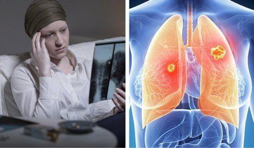 cancerul pulmonar cauze