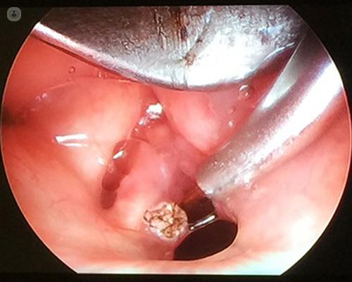 cancer colon guerison intraductal papilloma carcinoma