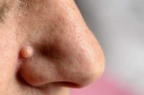 papillom entfernen nase viral papilloma uvula