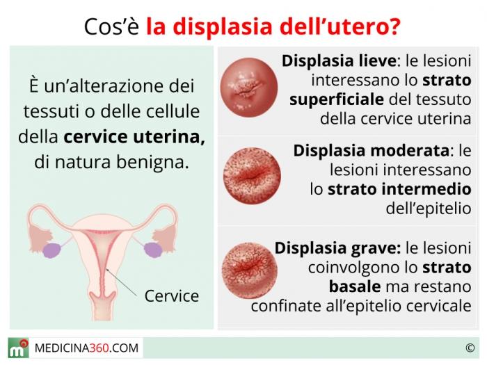 hpv collo utero sintomi