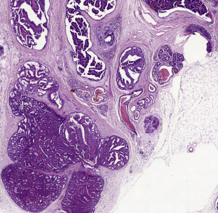 ductal papilloma outlines