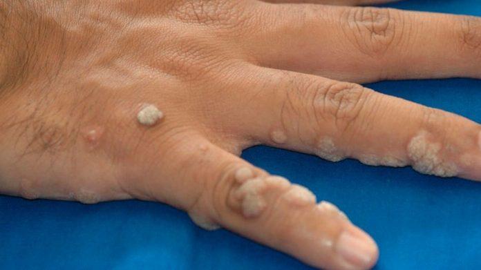 virus del papiloma humano piel a piel